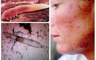 Piolhos subcutâneos em humanos no corpo e cabeça