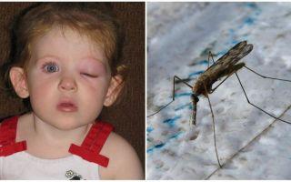 O que fazer se uma criança tiver um olho inchado depois de uma picada de mosquito