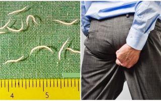Sintomas e tratamento de vermes em adultos