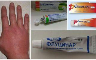 Depois de uma picada de mosquito, a mão de uma criança ou de um adulto inchou