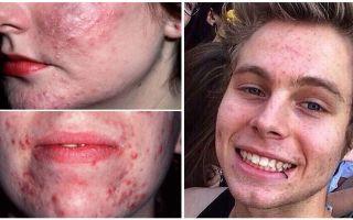 Tratamento de demodicose no rosto de uma pessoa