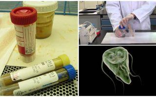 Como passar corretamente fezes em Giardia, métodos de análise