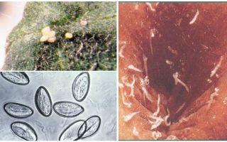 Como são os ovos de pinworm?