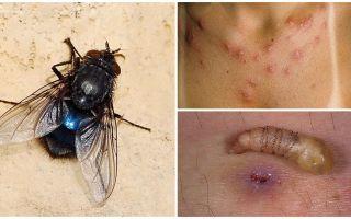 Uma mosca que põe larvas sob a pele humana