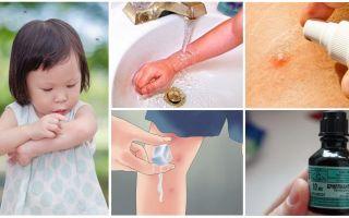 Como e o que tratar as picadas de mosquito em uma criança