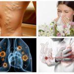 Alergia, doença cardíaca, tuberculose