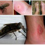 Mordida de inseto no corpo humano