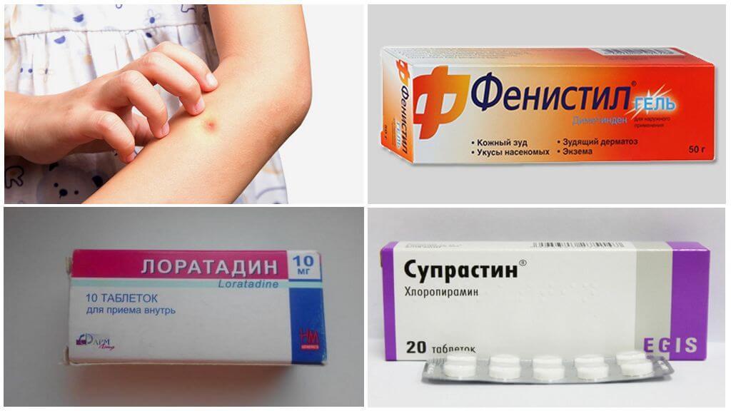Medicamentos de alergia à picada de mosquito