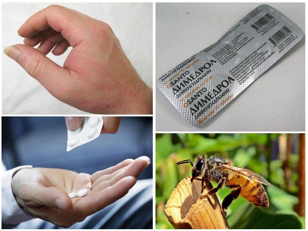 Mordida alergia tratamento