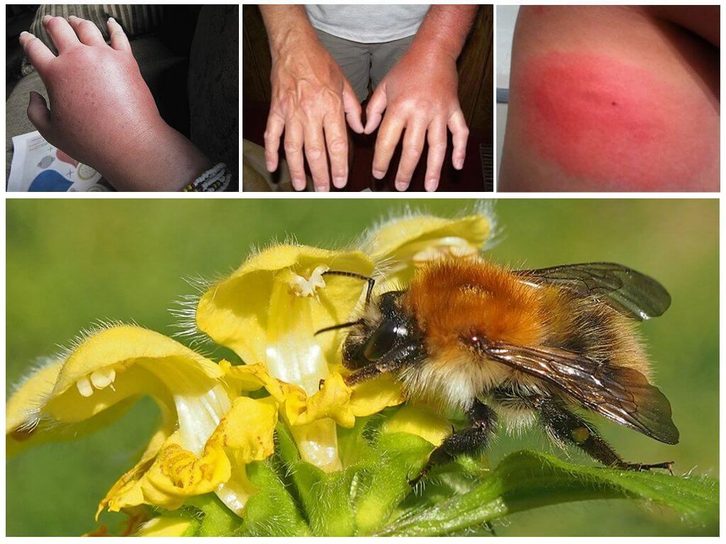Bumblebee mordida