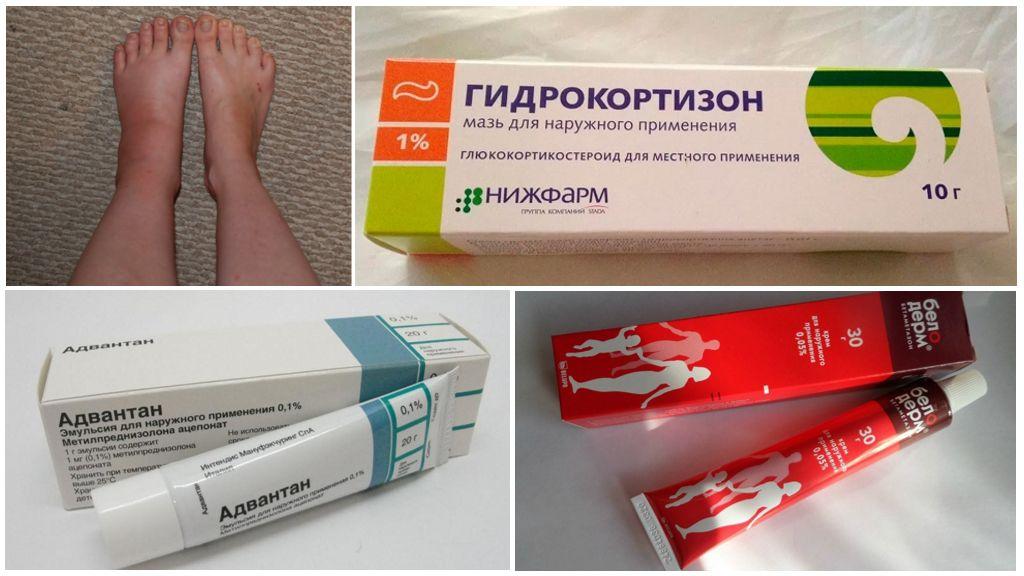 Tratamento de edema com drogas hormonais