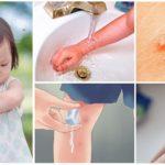 Primeiros socorros para picadas de mosquito em crianças