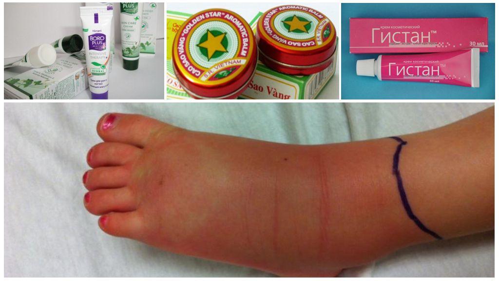 Tratamento de inchaço nas pernas com remédios naturais