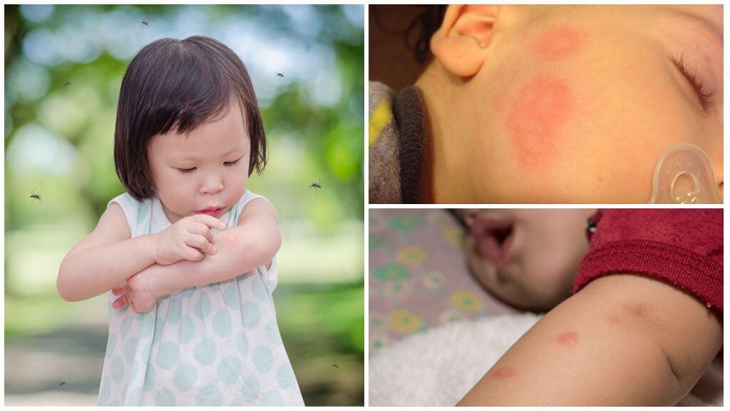 Picadas de mosquito em crianças