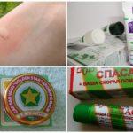 Tratamento de mordida de mosquito