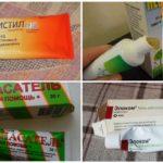 Meios para crianças de picadas de mosquito