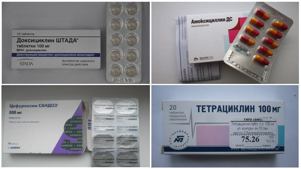Antibióticos para Borreliose
