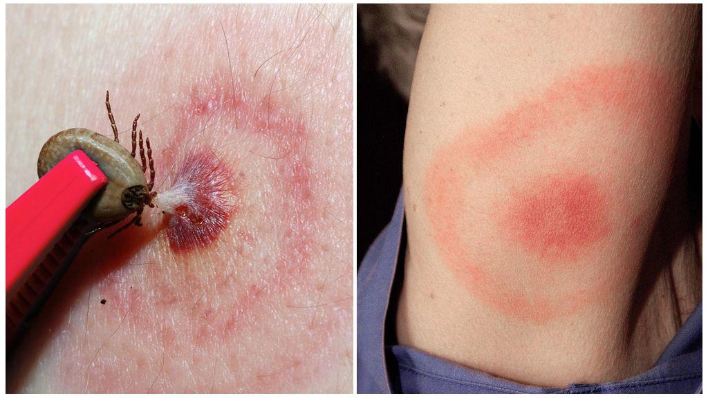 Doença de Lyme ou Borreliose transmitida por carrapatos