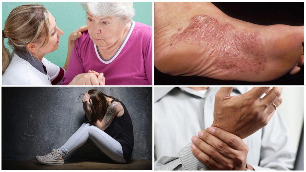 Sintomas do estágio crônico de borreliose